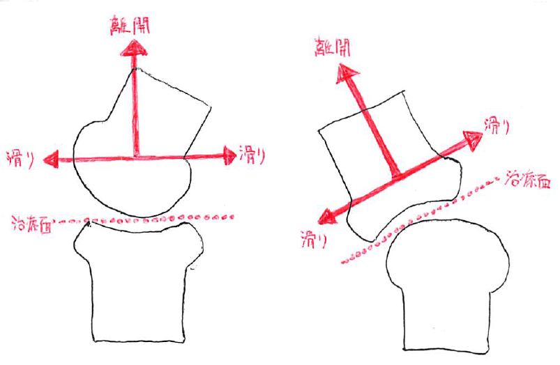 凹凸の法則と治療面