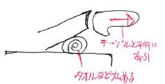 手関節の離開