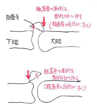 膝蓋骨モビライゼーション