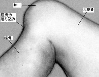膝屈曲拘縮