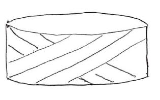 椎間板ヘルニア1