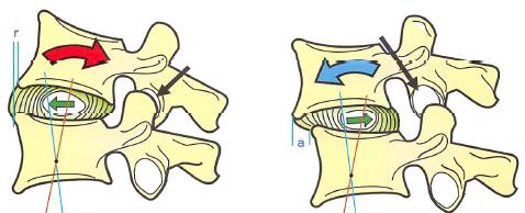 椎間板の動き