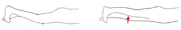大腿四頭筋のパテラセッティング