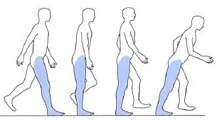 下腿三頭筋麻痺