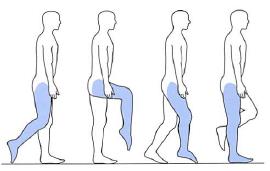 前脛骨筋麻痺