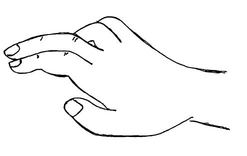 鷲手,尺骨神経麻痺