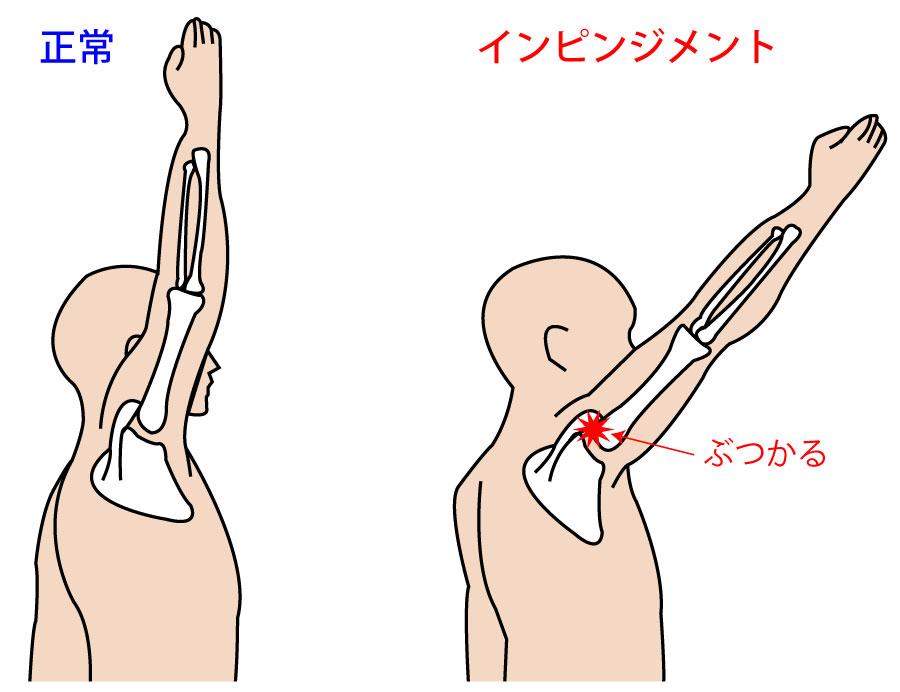 肩関節の『インピンジメント症候群』とは