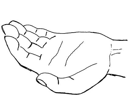 正中神経麻痺,猿手