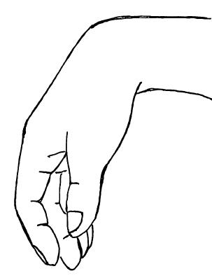 下垂手,橈骨神経麻痺