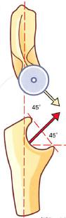 肘関節モビライゼーション2