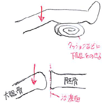 脛骨大腿関節モビライゼーション