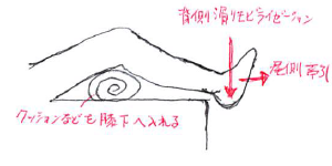 距腿関節モビライゼーション