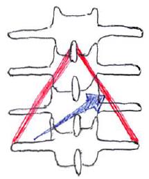 多裂筋の触診