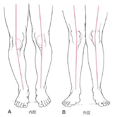 膝の内反・外反
