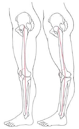 「骨盤の前方変位 イラスト」の画像検索結果