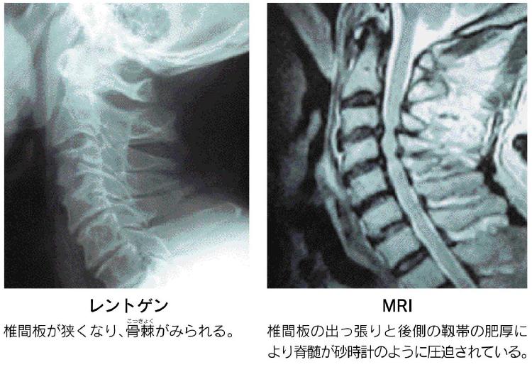 変形性頸椎症のレントゲン