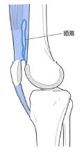 膝蓋上嚢の癒着
