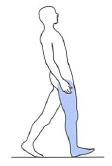 大臀筋麻痺