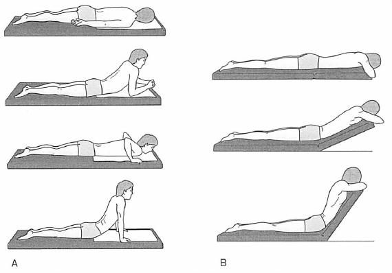 マッケンジー体操の方法(伸展)