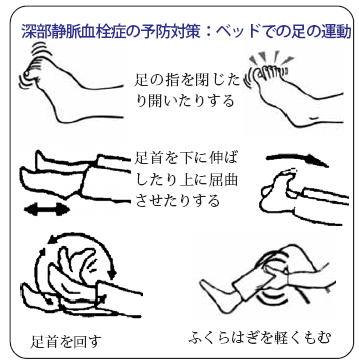 深部静脈血栓症の予防