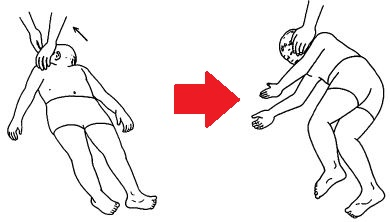 頸部からの立ち直り反応 頸部からの立ち直り反射
