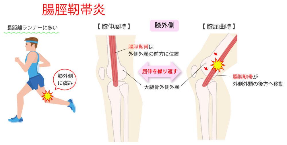 腸脛靭帯炎の解消・予防に必要な情報を公開するよ