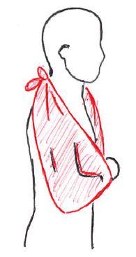 三角巾,コッドマン体操