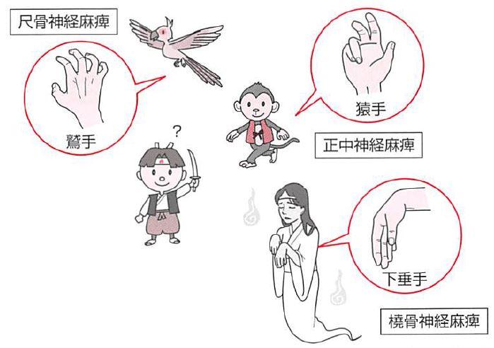 尺骨神経麻痺(鷲手)・正中神経麻痺(猿手)・橈骨神経麻痺(下垂手)