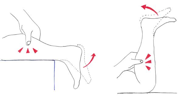 アキレス腱断裂に対するトンプソンテスト