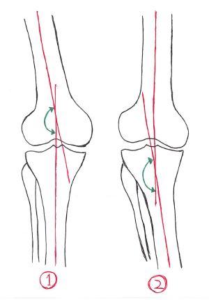 大腿脛骨角(FTA)