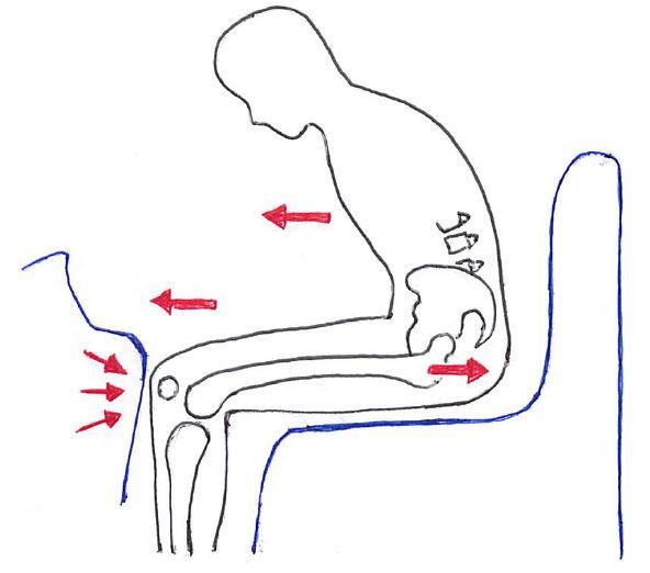 外傷性股関節脱臼(後方)