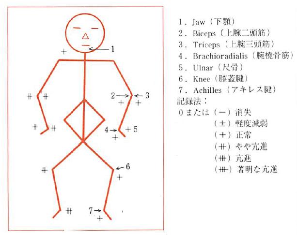 反射検査の図(深部反射)