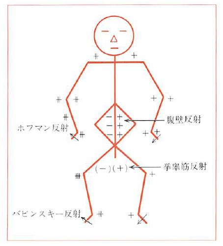 反射検査(病的反射検査)