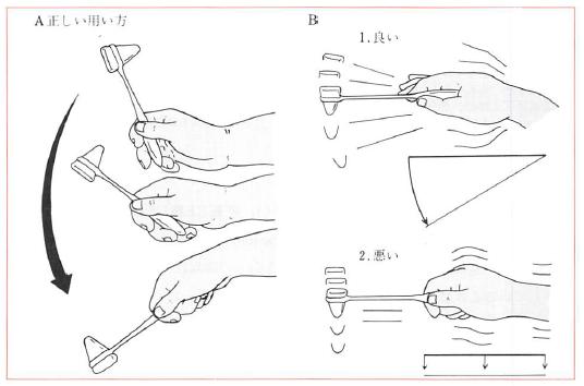 打腱器の使い方