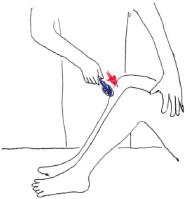 深部反射 膝蓋腱反射
