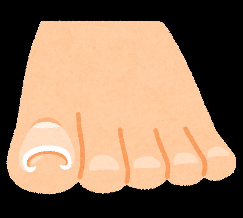 巻き爪の予防・治療(テープを使った方法も紹介するよ)