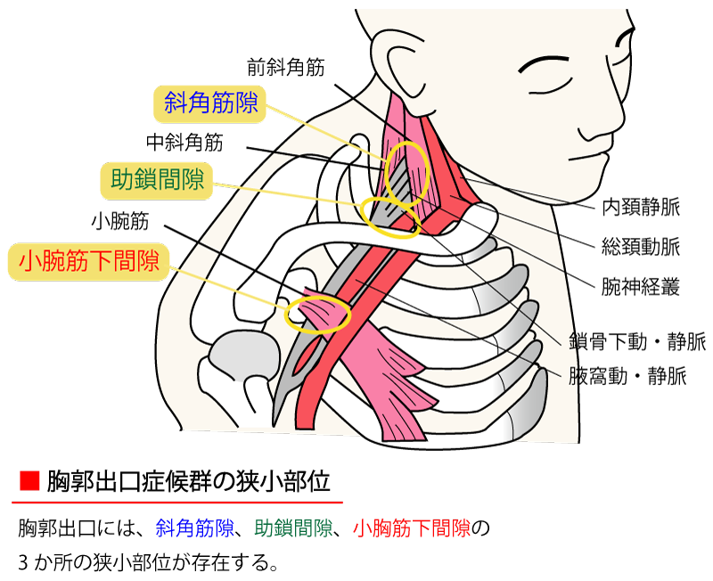 「斜角筋症候群」の画像検索結果