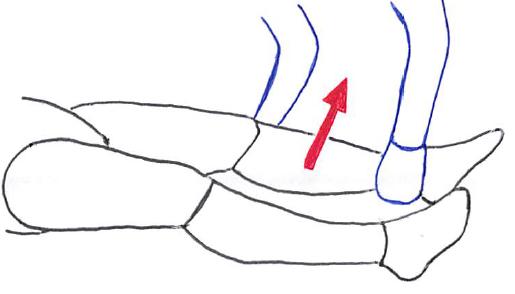 外反ストレステストによる内側側副靭帯損傷に対する整形外科的テスト