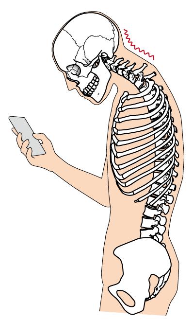 頭部前方位姿勢(Forward Head Posture)