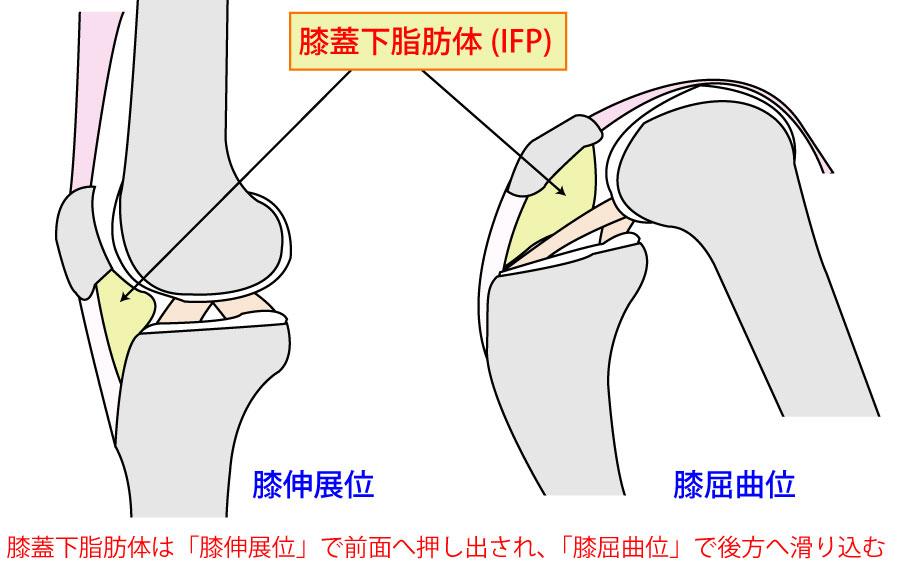 膝蓋下脂肪体(IFP)って何だ?疼痛誘発テストやアプローチ方法も解説