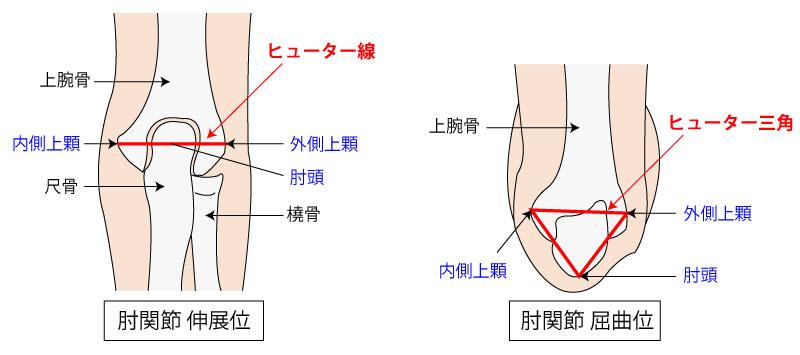 【肘関節】ヒューター三角(+ヒューター線)をイラストで紹介