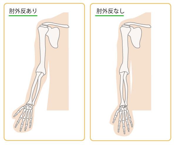 肘の生理的外反,外反肘,内反肘