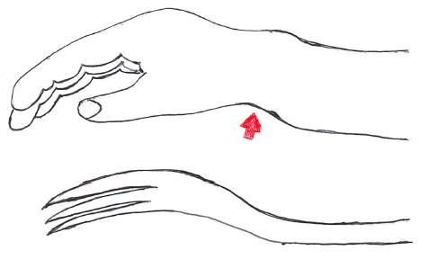 橈骨遠位端骨折 コーレス骨折